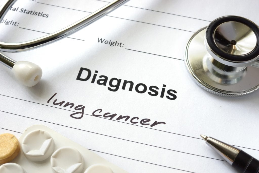 Realities Of Living With Lung Cancer Regional Cancer