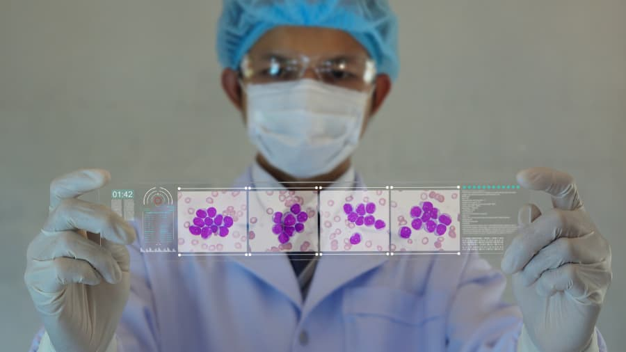 Doctor holding micrograph of leukemia cells