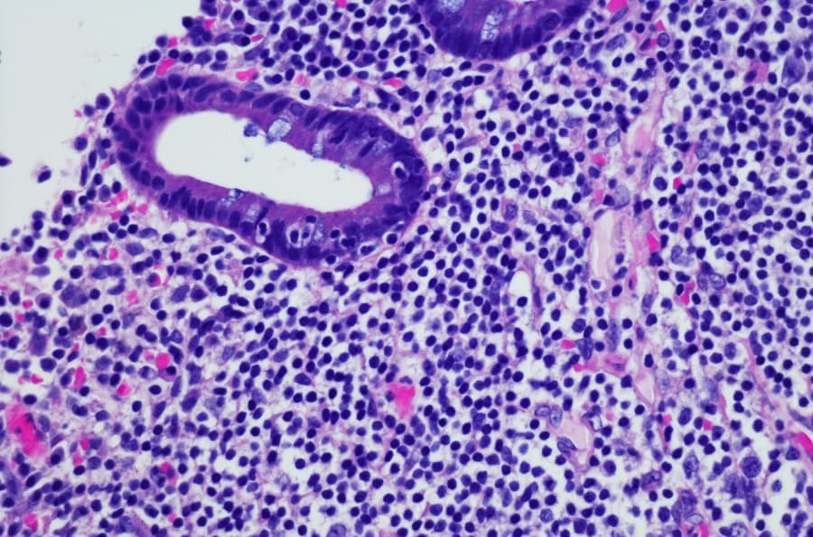 Non-Hodgkin lymphoma under microscope