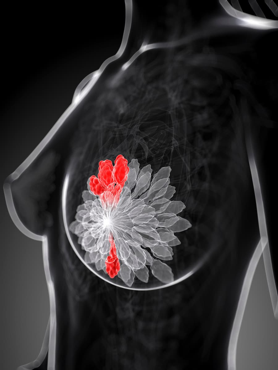 artist rendition of breast cancer